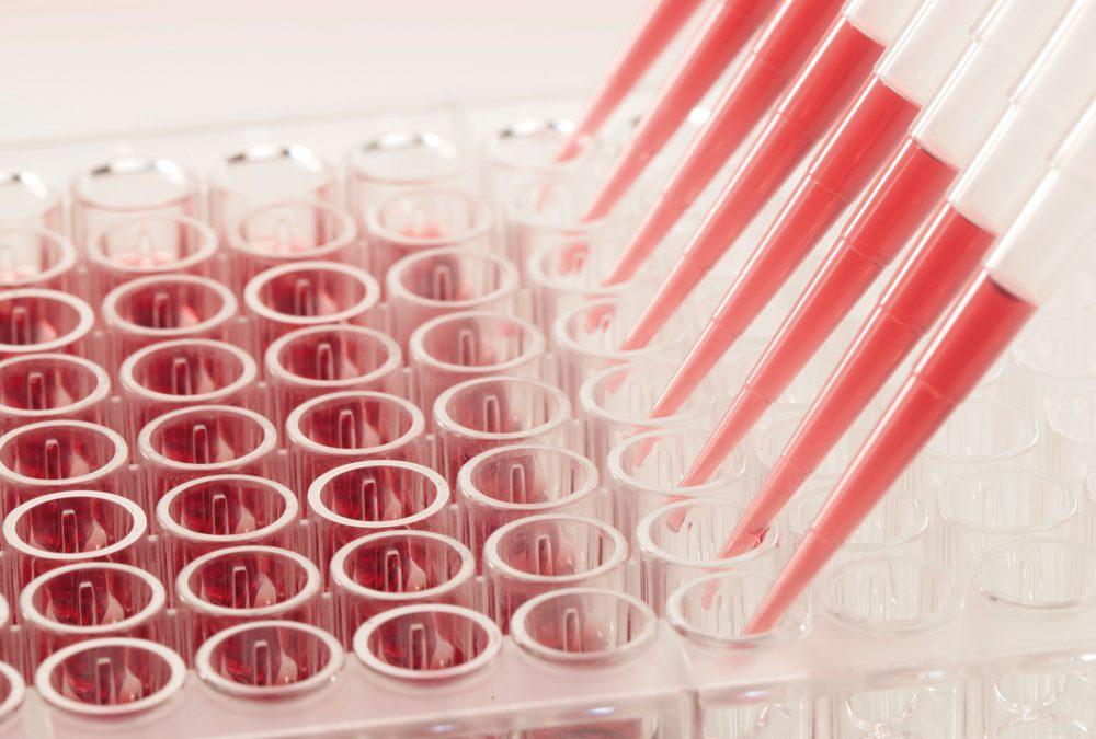 Verlässliche Antikörpertests für die COVID-19 Diagnostik – die beiden Biotechnologieunternehmen CANDOR Bioscience GmbH und trenzyme GmbH leisten mit ihren Produkten einen wichtigen Beitrag für die COVID-19 Test-Entwicklung
